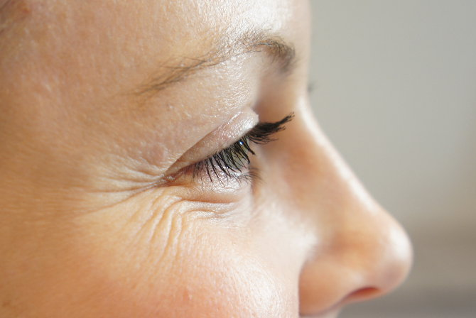 How Wrinkles Form & What You Can Do
