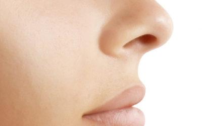 It's Blackhead Season – How to Treat Blackheads & Clogged Pores